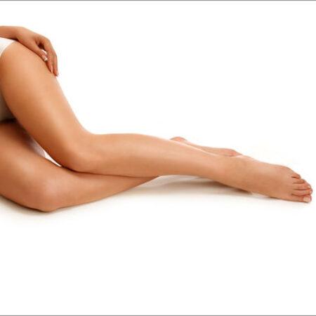 Laser e capillari delle gambe