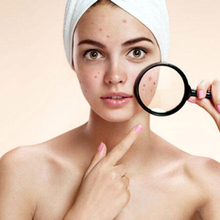 L'acne nelle adolescenti