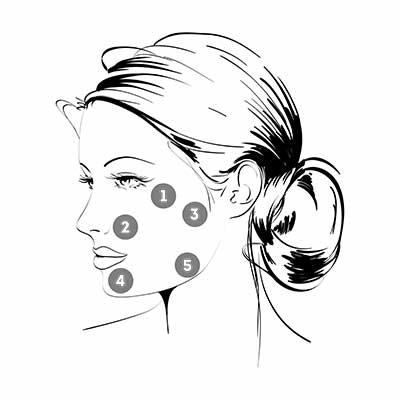 La tecnica BAP (Bio Aesthetic Points). Il biorimodellamento, la vera novità contro l'invecchiamento cutaneo
