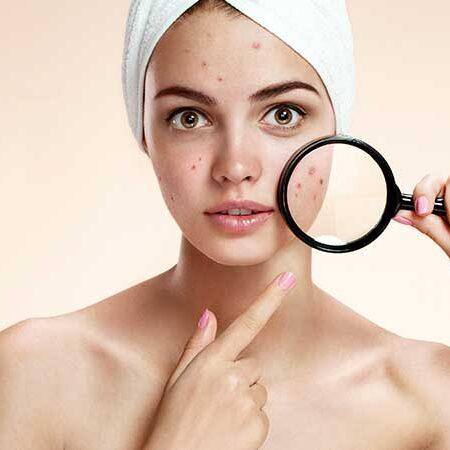 Le cicatrici da acne. Perché si formano, come si trattano. E come fare per prevenirle