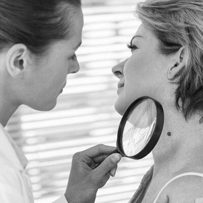 I tumori della pelle, come si riconoscono, come vengono rimossi