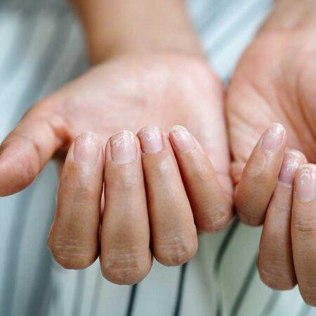 Brittle nail. Quando le unghie sono fragili